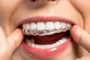 Tips for Cleaning Your Invisalign Aligners